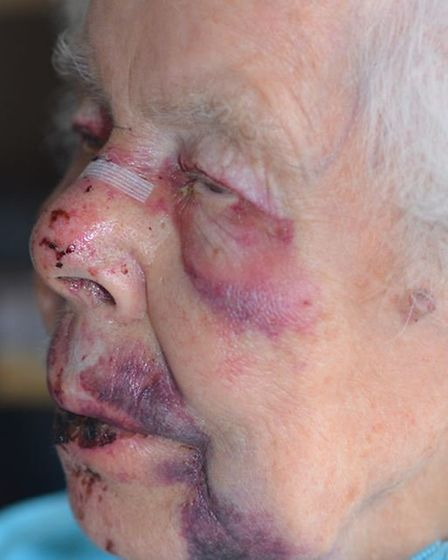 Joan Hollington was left with a broken nose, fractured wrist and severe bruising.