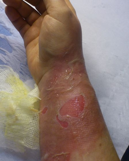 Debbie Pyatt's arm was burnt after boiling water was splashed over it
