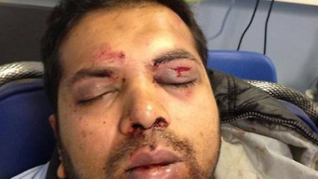 Anisur Rahman, who was viciously attacked by a fare dodger he picked up from St Ives