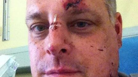 Paul Westerman's facial injuries following the accident