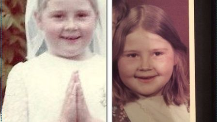 St Albans contaminated blood victim Nicky before and after she received the tainted product