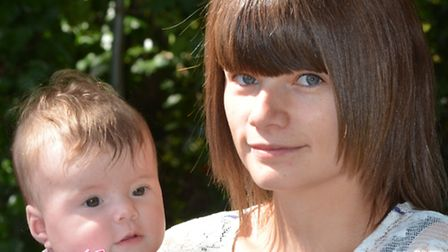 Baby Rubee Scrivener, who has Plagiocephaly, also known as flat head syndrome, with mum Tina Scriven