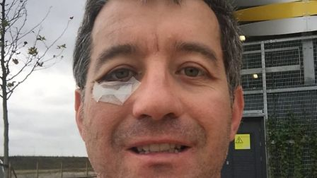 "David, owner ofFighting Fit gym at the Royston Heath, sustained a serious orbital socket ""blowout"" i"
