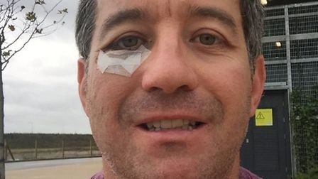 """David, owner ofFighting Fit gym at the Royston Heath, sustained a serious orbital socket """"blowout"""" i"""