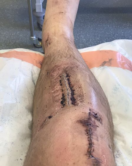 The leg of St Ives Town player Josh Dawkin after surgery.