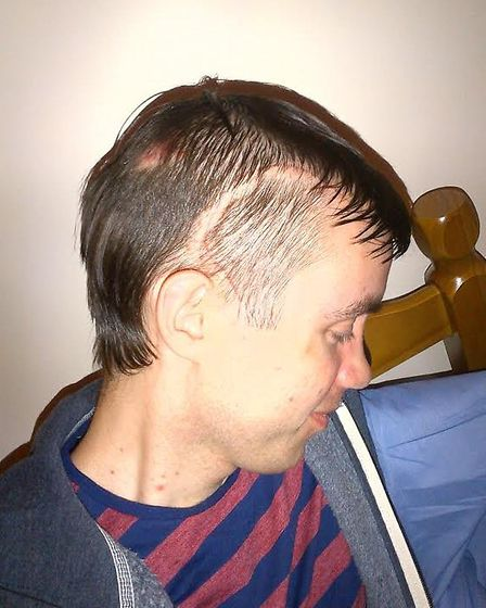 Rob Cracknell following his brain operation