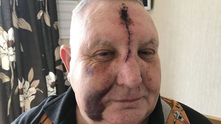Philip Wetherilt suffered appalling facial injuries