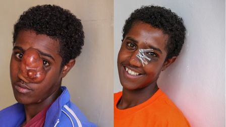 A before and after picture of a patient Project Harar has helped in Ethiopia. Picture: Submitted by