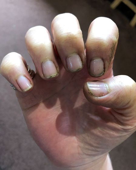 Nailed it: Debbie's manicure wasn't looking its best after a vigorous lawn mowing session. Picture: