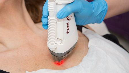 Fraxel treatment at Skin To Love Clinic in St Albans.