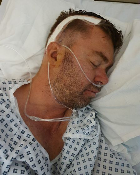 Paul Fisher has bee receiving treatment in hospital