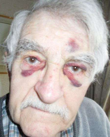 David Austin suffered two black eyes as a result of the fall