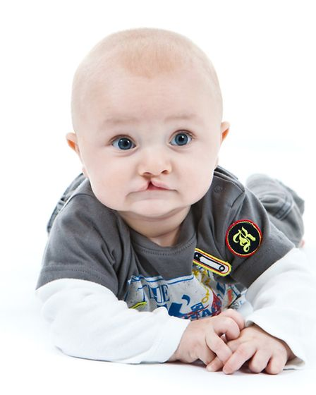 Max Harrington before he had operation to repair his cleft lip