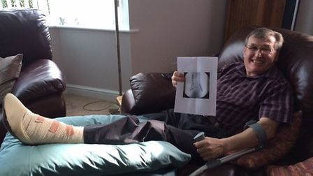 Ray Wood with his x-ray after his double ankle break