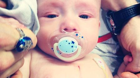 Logan had to undergo open heart surgery when he was less than a year old