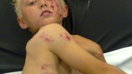The injuries sustained by Xaine Leake following an alleged attacked by a German shepherd