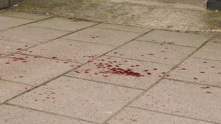 Blood on the pavement opposite Look Sharp on Bancroft