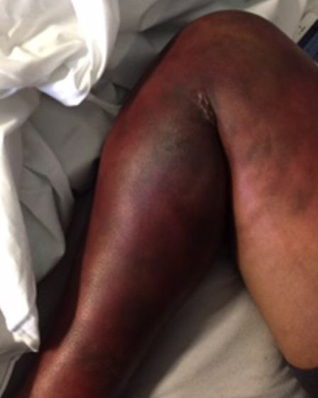 Letchworth 17-year-old Kierha Megan's right leg, swollen and discoloured by complex regional pain sy