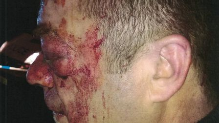 The 50-year-old assault victim is from Stevenage