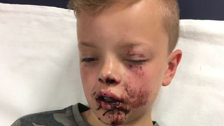 Jayden,10, had to have plastic surgery after he fell 20 feet onto his face while out playing with fr