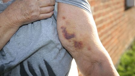 Bruising on 73-year-old Margaret Shailer's arm after she fell and had to wait five hours for an ambu