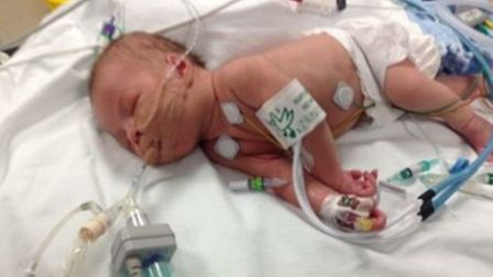 Baby Jack was fighting for his life at just four weeks old. Picture courtesy of The Sick Children's