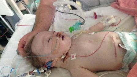 Thomas underwent heart surgery as a newborn baby. Picture: Lisa Titmus