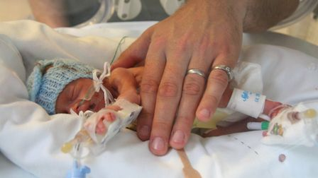 Lelu weighed just 1lb 8oz when she was born. Picture: Louise Young