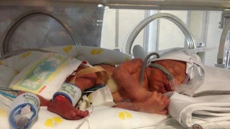 Max Doggett at five days old. Picture courtesy of the East and North Herts NHS Trust.