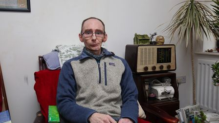 Graham Harrison has had to have his jaw partially amputed because of cancer. Picture: DANNY LOO