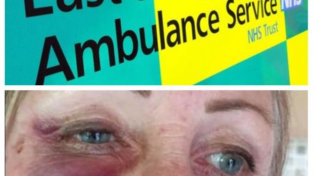 Paramedic Brenda Fox was beaten while responding to a call in Hitchin. Picture: Courtesy of Kerry Fo