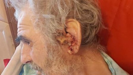 Concerns have been raised about the living conditions of 79-year-old Gregory from Letchworth. Pictur