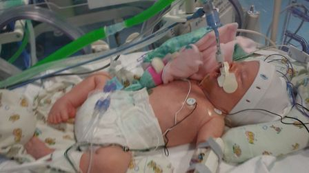 Baby Lily is desperately fighting for her life in Addenbrooke's Hospital, Cambridge. Picture: Simon