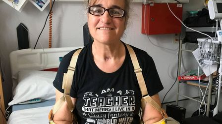 Caroline is beginning to learn how to use her prosthetic hands. Picture: Courtesy of the Coster fami
