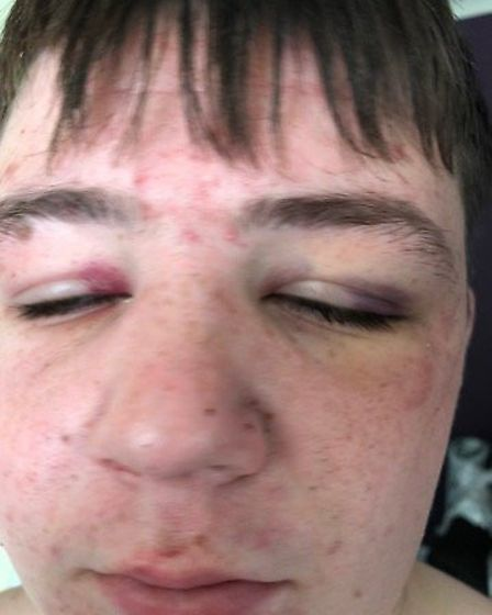 Jack Green, 16, attacked in Wisbech on Friday night/Saturday morning as he walked home from a party.
