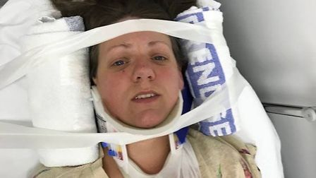 Joanne Wharf posted this photo of herself in hospital following a hit and run incident at Guyhirn. S