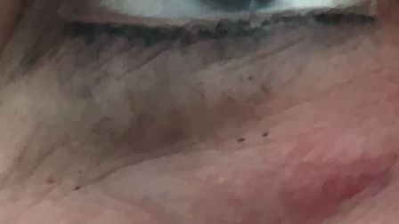 Wisbech attack: Evidence of the black eye sustained by Wisbech attack victim on Friday, The photo wa