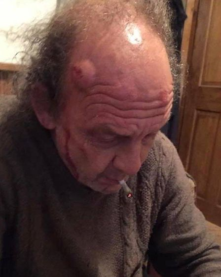 Allen Sashas father (pictured) was assaulted during a break-in at their home in Parsons Drove, Wisbe