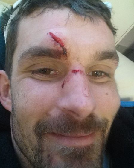 Surfer Paul Barrington snaps a picture of his injuries after arriving at hospital.
