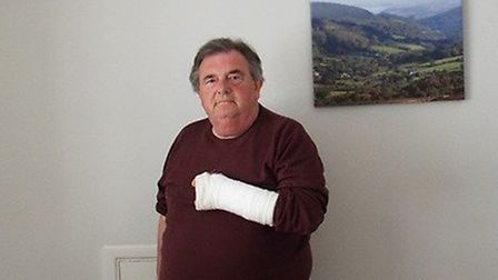 Graham Hill from Minehead broke his arm after tripping over a pavement trying to move out of ambulan