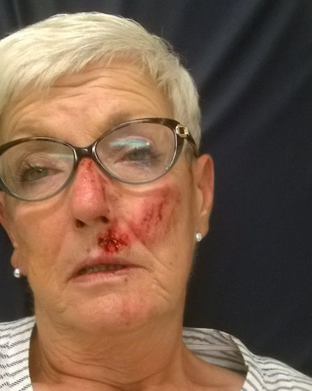 Jennifer James is calling for someone to take responsibility for 'dangerous' lane after she suffered