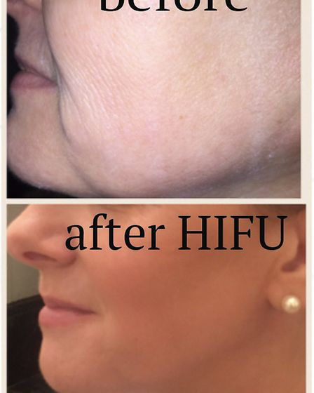 Before and After HIFU treatment