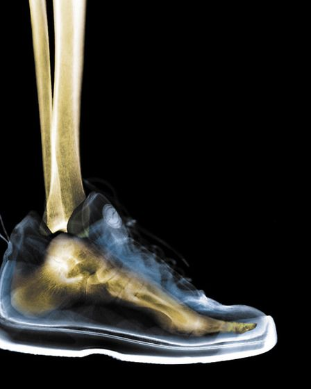 The Foot Centre at Camomile - X-ray of foot in athletic shoe