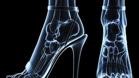 The Foot Centre at Camomile - women's feet under x-ray