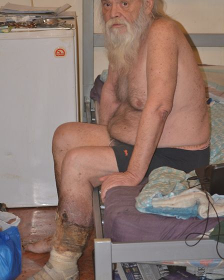 Ken Macleod's leg was left to rot for months as he waited for a social worker to come and visit him at his bedsit