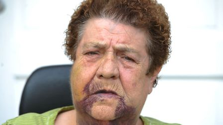 Patricia Beckford, 75, was attacked last month Photo: David Mirzoeff