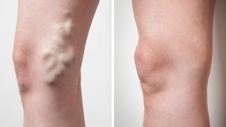 Before and after treatment (c) Emilie Sandy Photography