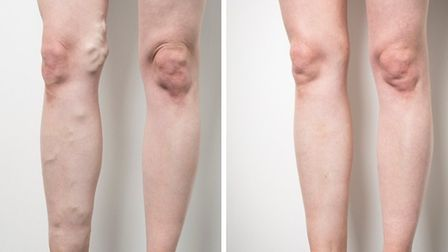 Before and after treatment at the Veincentre (c) Emilie Sandy Photography