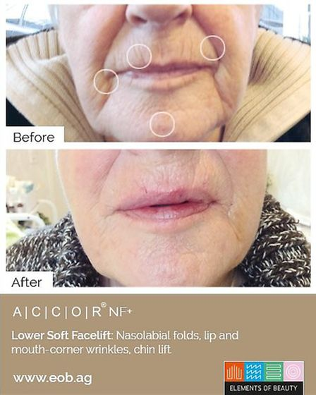 Lower Soft Facelift by ACCOR
