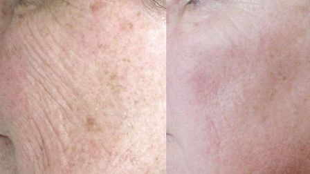 Karen before and after at ESS Clinic